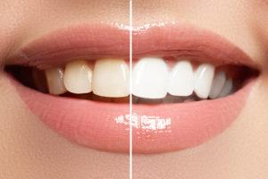 Hausmittel gegen Zahnstein