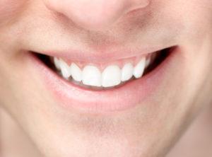 Zahnstein selbst entfernen