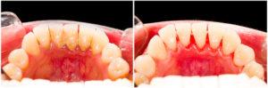 Hasumittel gegen Zahnstein